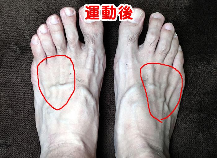 足こぎ発電機、運動後の足のむくみ具合